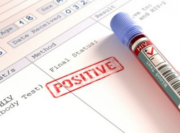 Mais de 9 milhões de pessoas não sabem que portam HIV, aponta relatório da Unaids